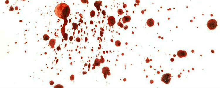 Гибель от руки убийцы
